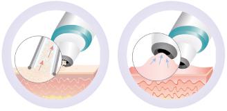 podwojne-dzialanie-schematy-Dermo-Peel