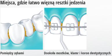 Irygator Panasonic dokładnie czyści miejsca wokół klamr dentystycznych